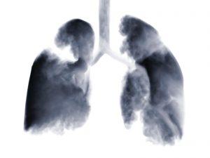 Smoke shaped as human lungs.