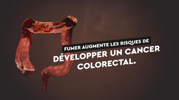 Cancer colorectal fumer