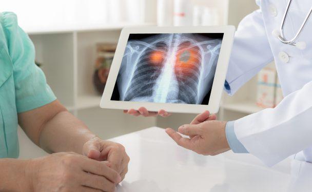 Un professionnel de la santé qui montre un scan de poumons sur une tablette à un patient fumeur.